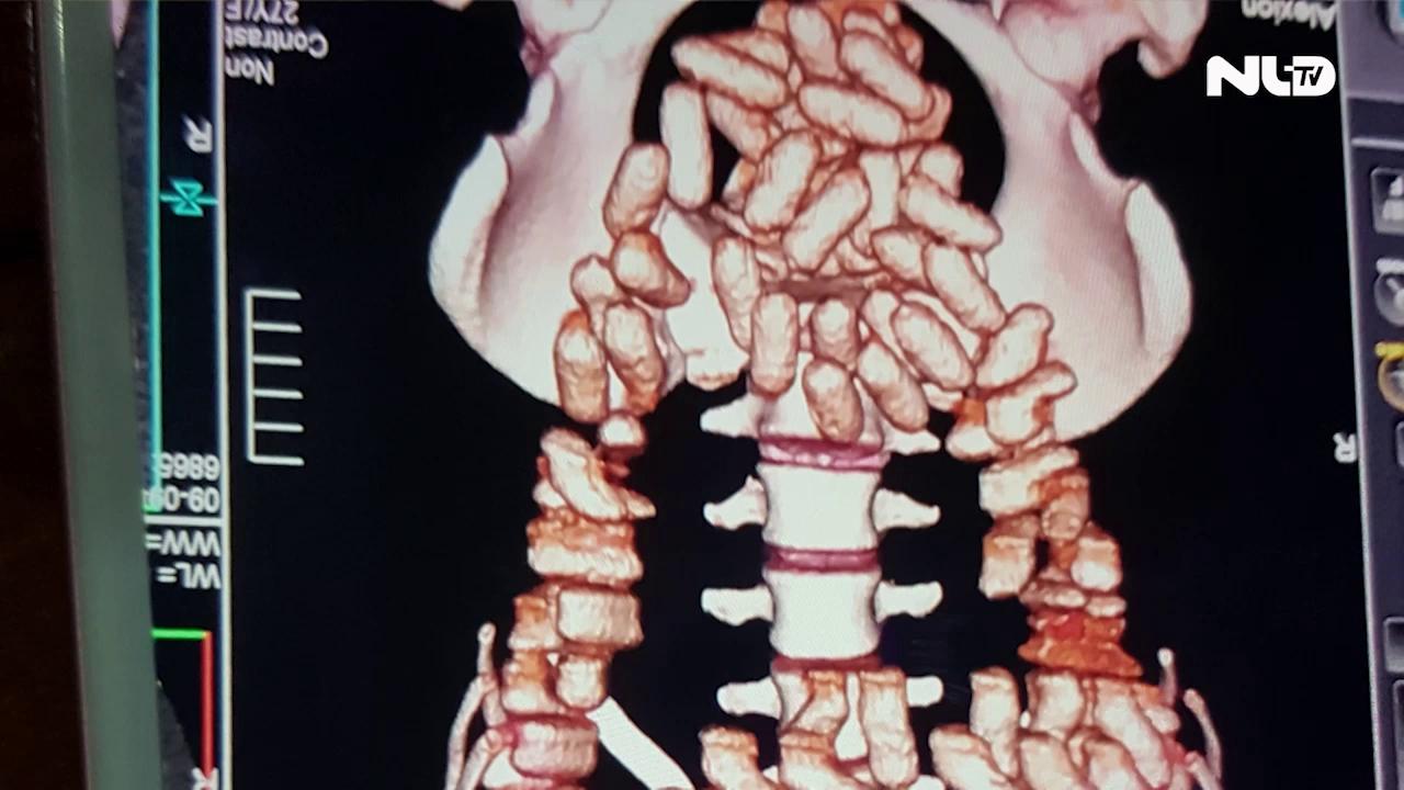 Bắt người nước ngoài nuốt 1,26 kg Cocain vào bụng