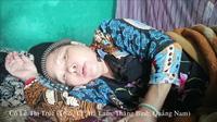 Bà Trúc - hàng xóm bà Trúc nói về hoàn cảnh và bệnh của bà