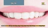 Thực phẩm giúp răng trắng sáng