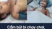 Cầm bút bi chạy chơi, bé gái 4 tuổi bị bút đâm xuyên thấu ngực