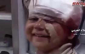 Bé gái Syria nở nụ cười trước camera Trên đường tới bệnh viện sau trận đánh bom gần thành phố Aleppo, Syria hôm 15/4, một bé gái bị thương song vẫn thể hiện sự lạc quan qua nụ cười.