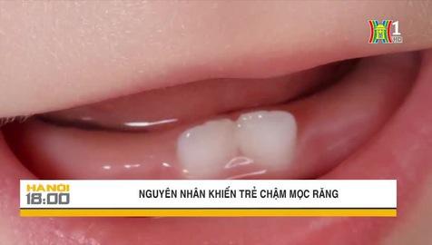 Những nguyên nhân khiến trẻ chậm mọc răng