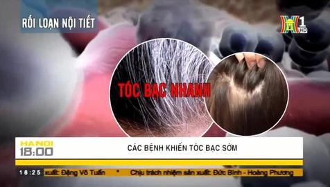 Các bệnh khiến tóc bạc sớm
