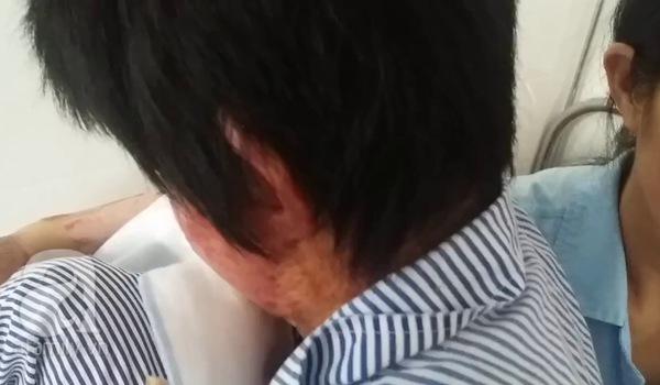 Chị Trang kể lại giây phút kinh hoàng lúc người chồng tưới xăng cùng tự thiêu