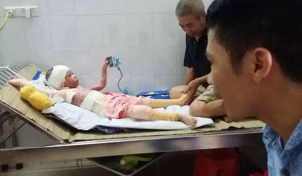 Người cha kể lại giây phút cứu con gái bị bỏng cồn