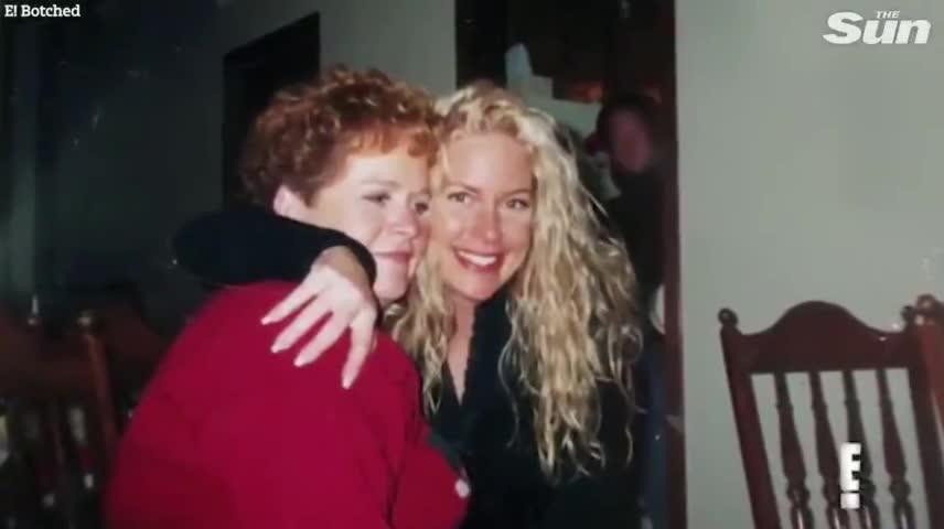 Xuất hiện trong chương trình truyền hình thực tế của Mỹ mang tên Botched, Laura Schild 47 tuổi úp mở về một tai nạn khủng khiếp khiến cuộc sống của cô đảo lộn hoàn toàn.
