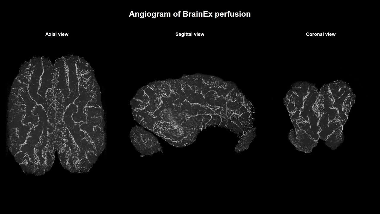 Hệ thống hỗ trợ não bộ BrainEx hoạt động như thế nào?