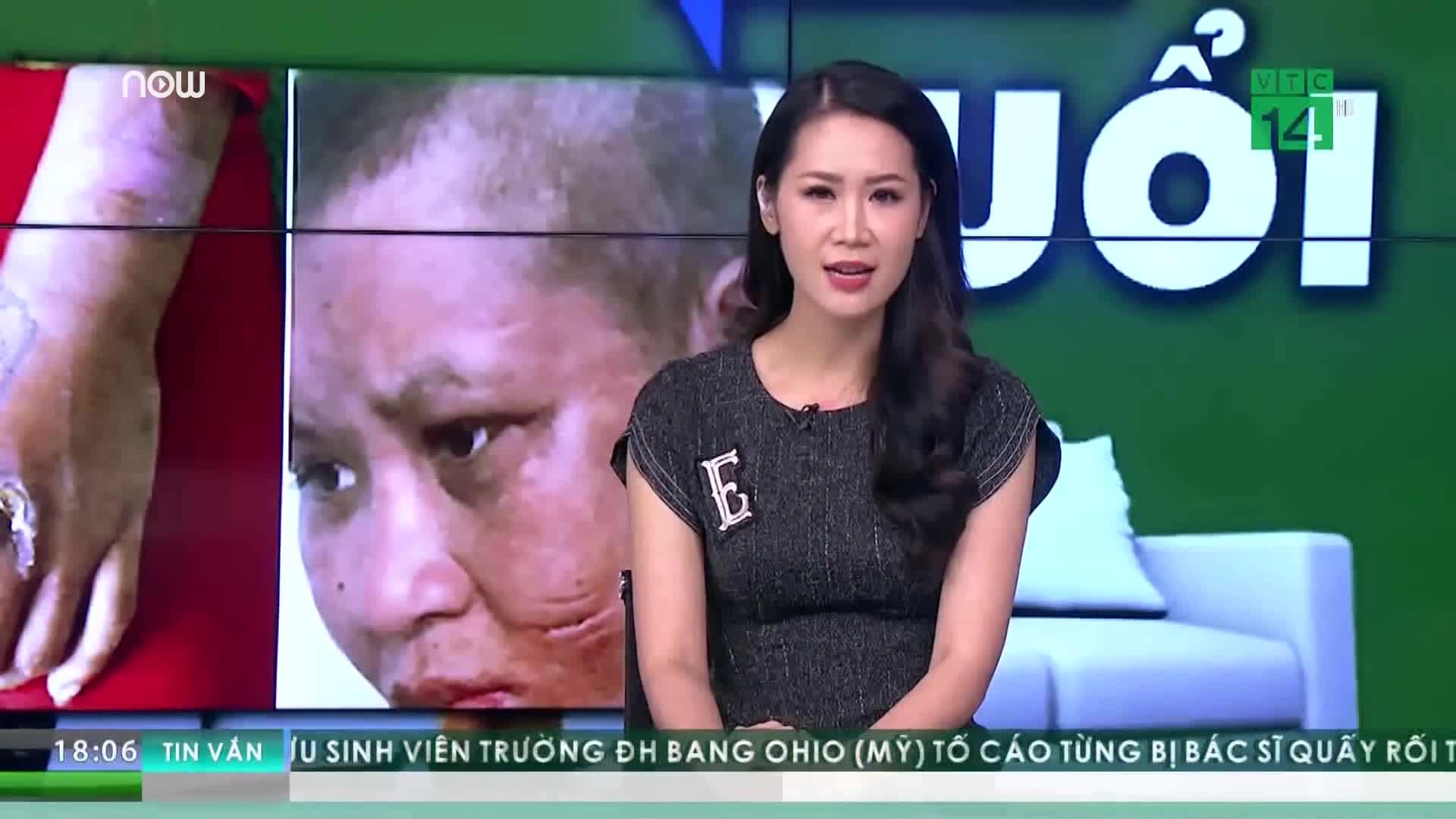 Phẫn nộ vụ cô gái làm thuê bị chủ tra tấn (Nguồn: VTC14)