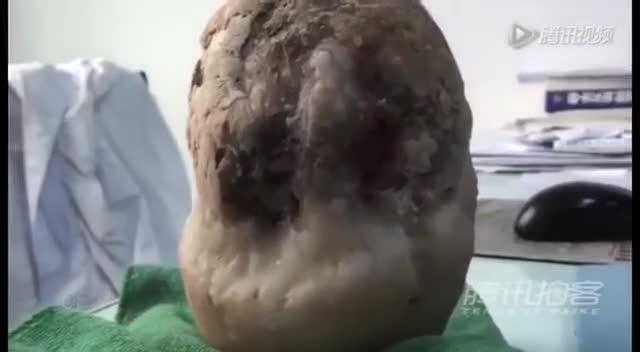Video: Phát hiện viên sỏi nặng 1,17 kg trong túi mật của một cụ ông