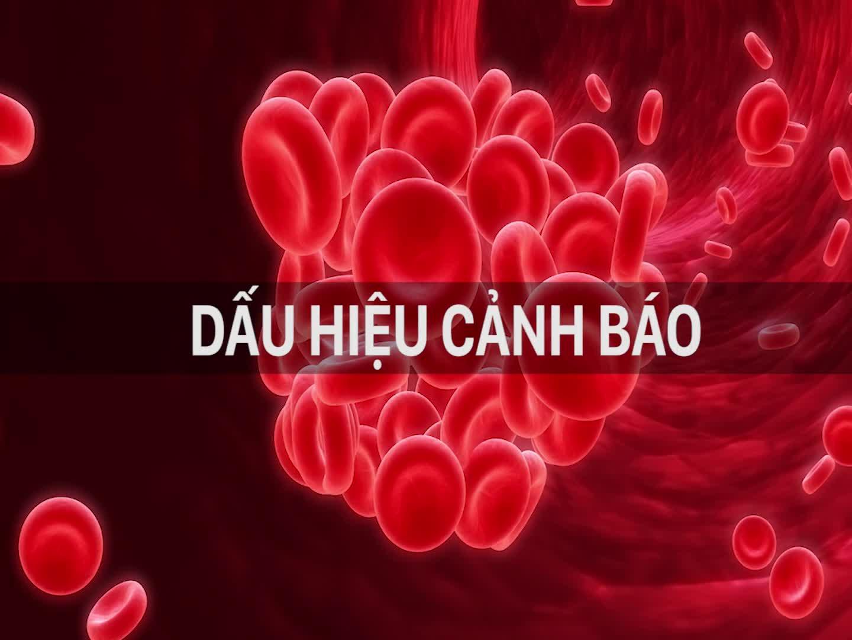 Dấu hiệu cảnh báo sớm bệnh huyết khối (cục máu đông)