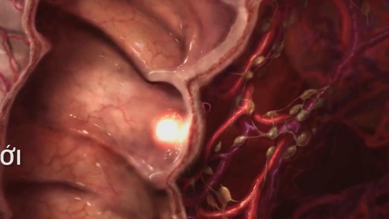 Ung thư gan - Biết muộn nghĩa là chết