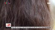 Không nên tự ý sử dụng thuốc để tự chữa rụng tóc