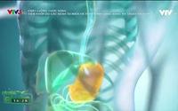 Chất lượng cuộc sống: Viêm khớp và thay khớp háng bằng kỹ thuật hiện đại
