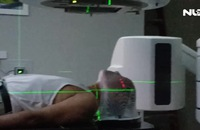 Xạ trị định vị thân (SBRT) đầu tiên cho bệnh nhân ung thư đầu cổ