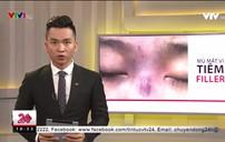 Thêm một vụ mù mắt vì tiêm filler