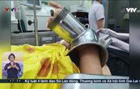 Bất cẩn để tay cuốn vào máy xay thịt, nữ bệnh nhân bị dập nát cánh tay