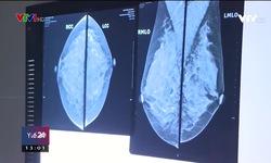 Ung thư vú đứng đầu trong các loại ung thư ở nữ giới