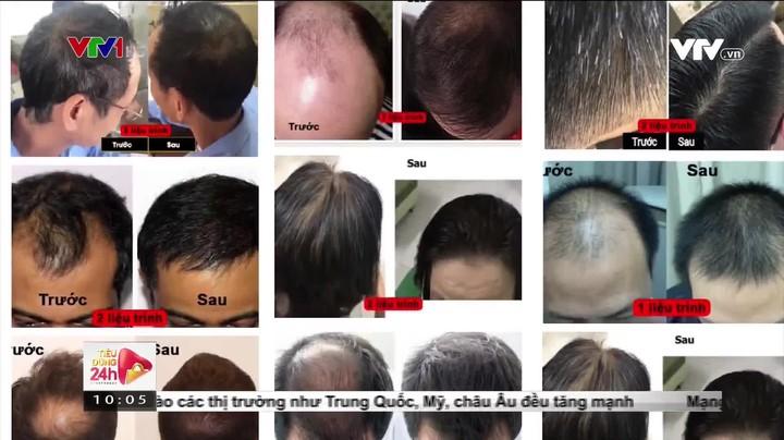 Thuốc chống rụng tóc, mọc tóc tràn ngập thị trường: Cần cẩn trọng khi chọn mua!